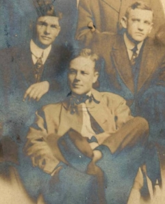 silvering is seen in the dark areas of this image.
